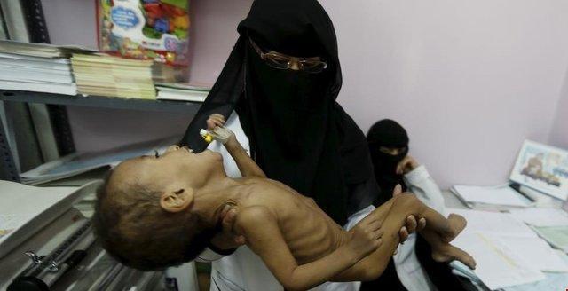 یونیسف: بچه ها یمنی، بار سنگین جنگ را به دوش می کشند