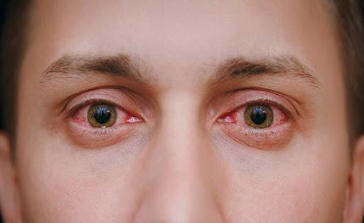 تشدید بیماری های چشم در دوران کرونا