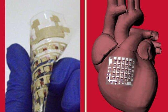 آنالیز مسائل قلبی با برچسب هوشمند